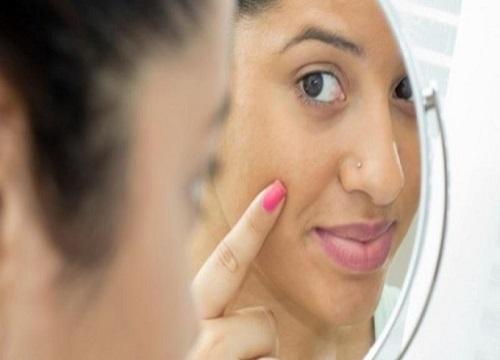 از بین بردن خال صورت و بدن