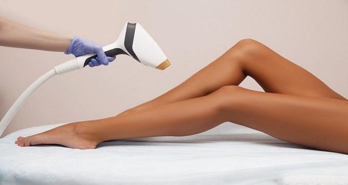 بیشترین کاربرد لیزر مو زائد برای کدام قسمت از بدن است؟