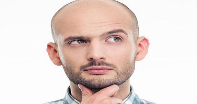 انتخاب بهترین روش کاشت مو متناسب با شرایط فرد