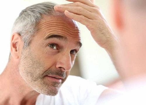 بهترین مرکز کاشت مو در کرج