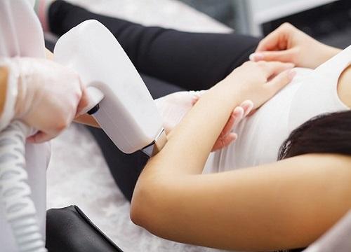 همه چیز در مورد لیزر کردن موهای زائد