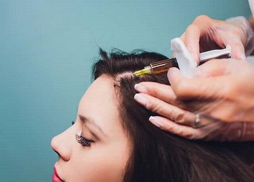 افراد مناسب و نامناسب برای انجام کاشت مو