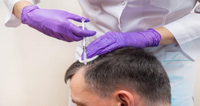 کاشت مو چگونه انجام می شود؟