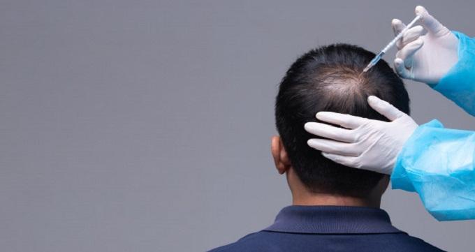 مراحلی که باید برای کاشت مو طی کنید