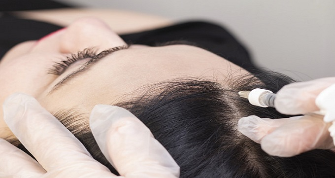 چگونگی کاشت مو به روش SUT