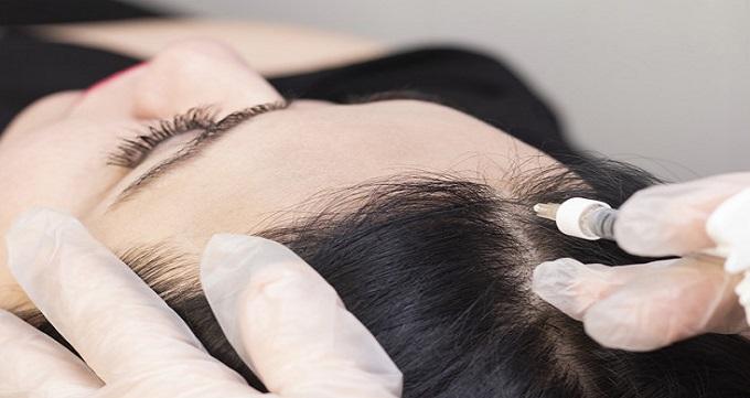 اثرات و فواید مزوتراپی مو