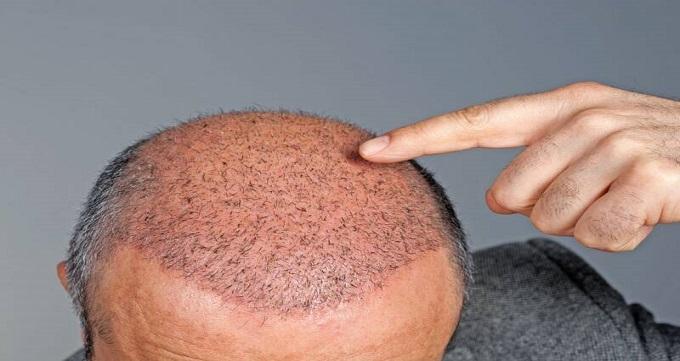 بهترین روش کاشت مو در جهان
