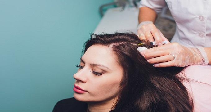 چه کسانی برای کاشت مو به روش fue مناسب هستند؟