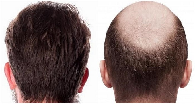 کاشت مو به روش FIT چگونه است؟