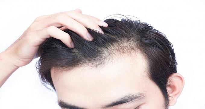 کاشت مو و روش های آن