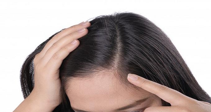 هزینه کاشت مو برای زنان