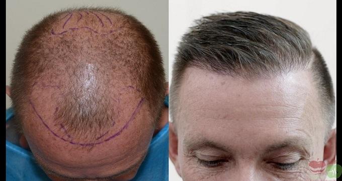 نکات مهم قبل از کاشت مو طبیعی