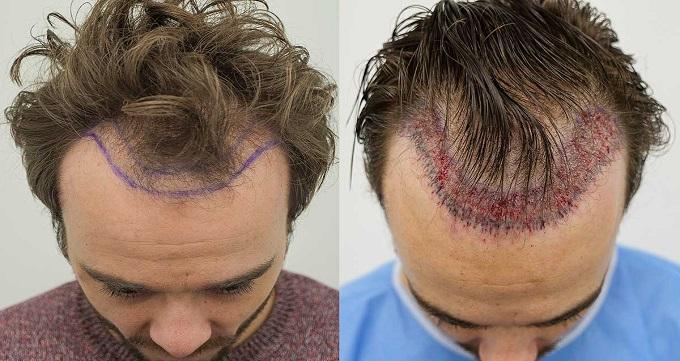کاشت مو به روش SUT چه مزایایی دارد؟
