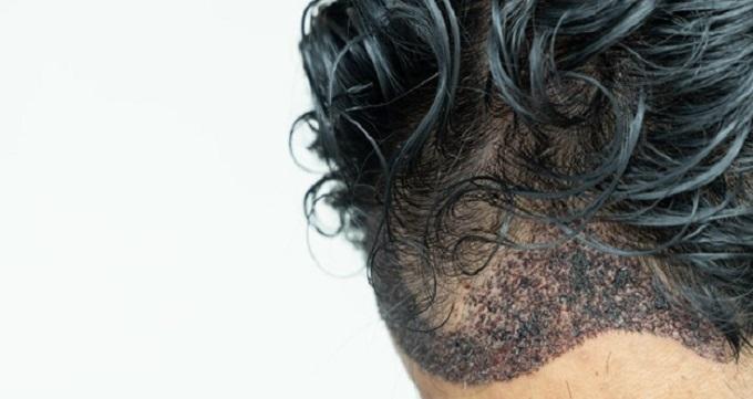 قیمت کاشت هر تار مو به چه عواملی بستگی دارد؟