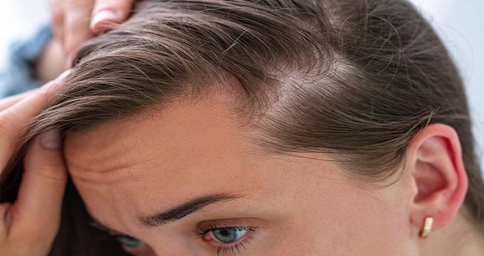 بهترین روش کاشت مو چگونه انتخاب می شود؟