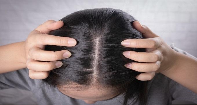عوامل موثر بر روی هزینه کاشت مو