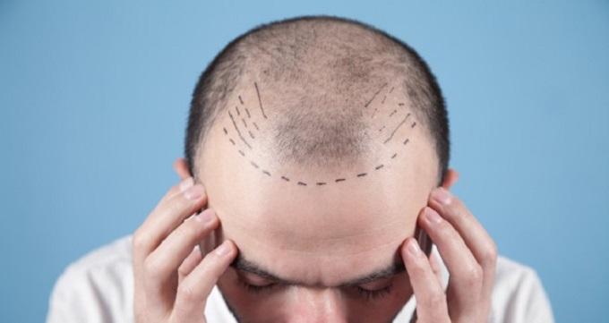 هزینه کاشت مو به روش FUE