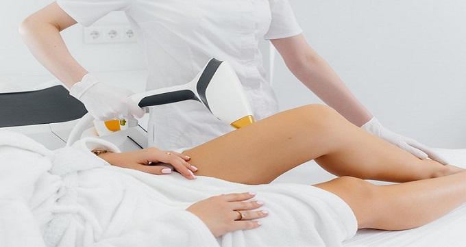 لیزر ساق پا چگونه انجام می شود؟