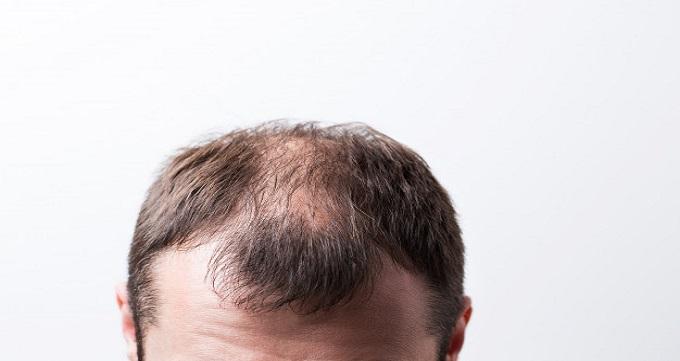 علائم ریزش موی مردان