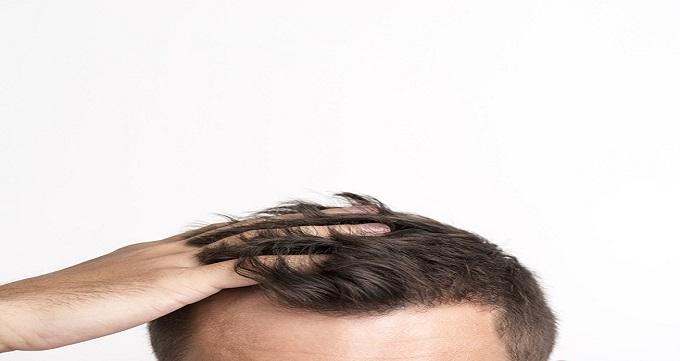 انواع روش های کاشت مو