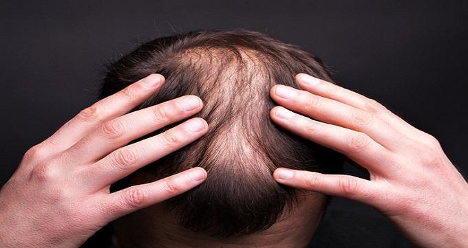 الگوی طاسی مردانه و با ریزش موی ژنتیکی چیست ؟