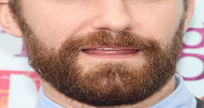 نتایج و دستاورد های کاشت ریش و سبیل طبیعی در مردان