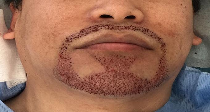 دلیل ریزش مو در ناحیه ریش و سبیل