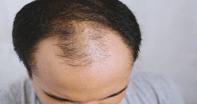 کاشت موی سر چگونه انجام می شود ؟