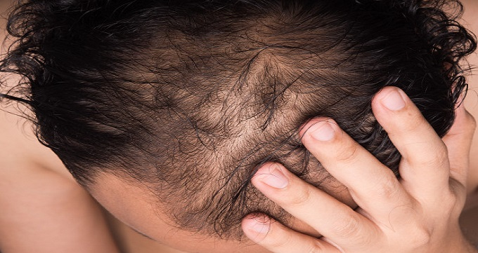 مراحل کاشت مو به روش ترکیبی