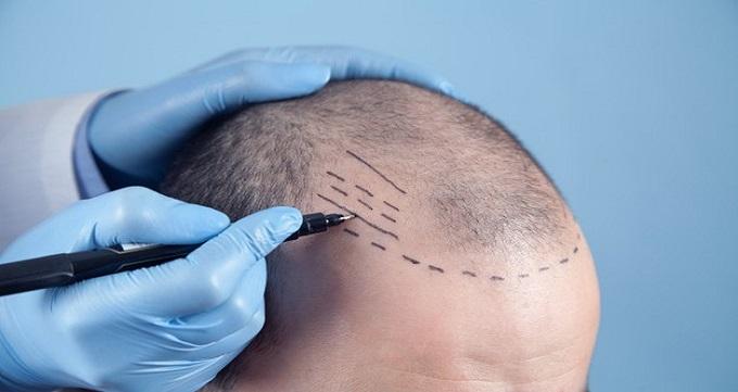 کاشت مو به روش ترکیبی