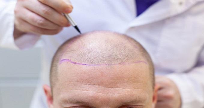 ضخامت مو پس از کاشت