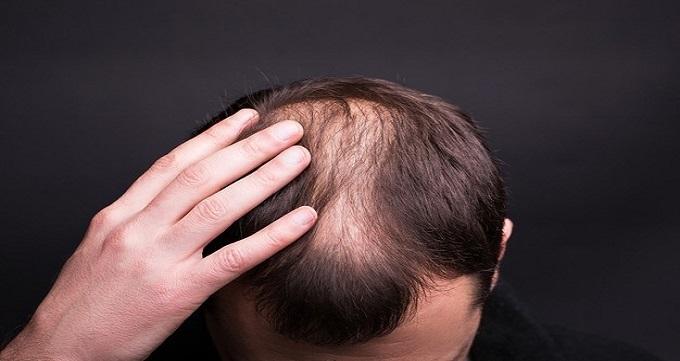 عوارض بعد از کاشت مو