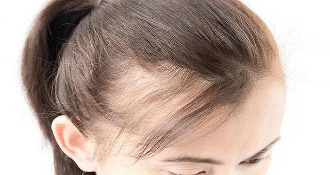 مراحل کاشت مو در زنان