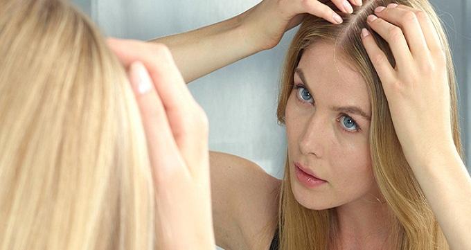 کاشت مو در زنان