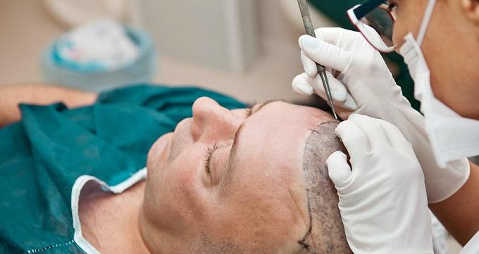 عوارض عمومی کاشت مو