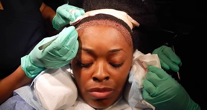 عوارض کاشت مو چگونه است؟