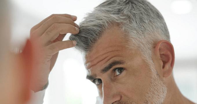 هزینه کاشت مو چقدر است ؟