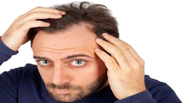 کاهش هزینه کاشت مو به چه عواملی بستگی دارد؟