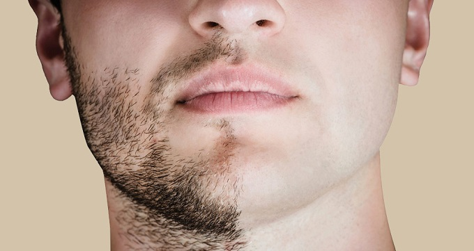 کاشت ریش چیست ؟