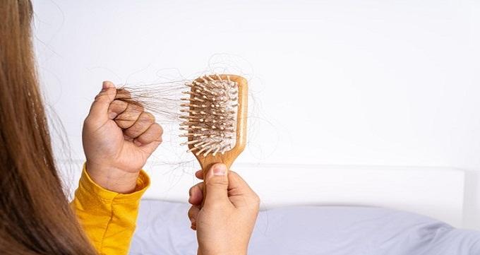 هزینه کاشت موی سر