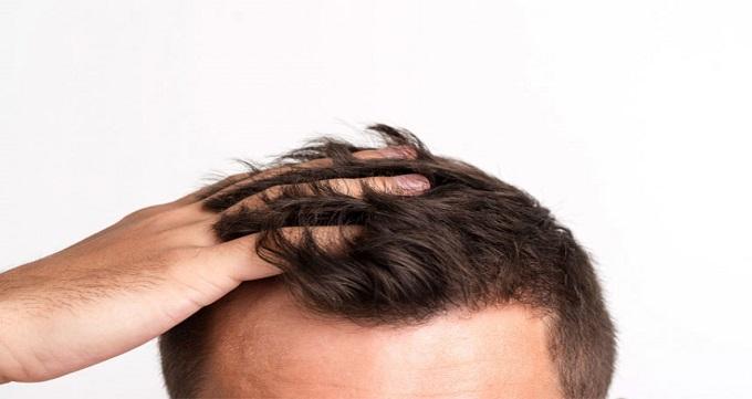 افراد مناسب برای انجام کاشت مو