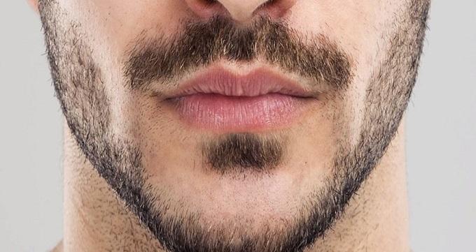 افراد مناسب کاشت ریش