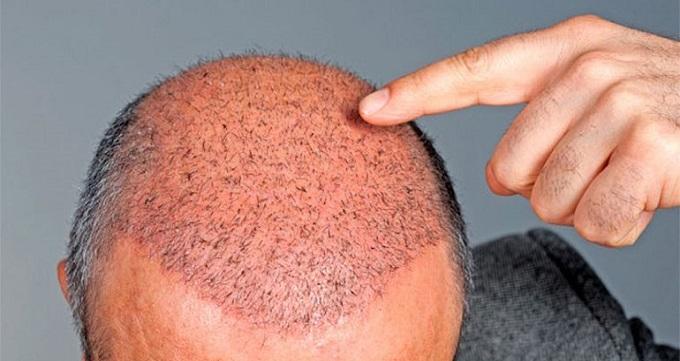 عوارض انجام کاشت مو
